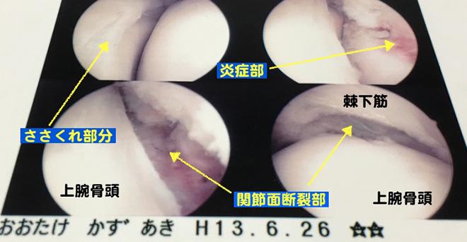 yakyukata_article139-2
